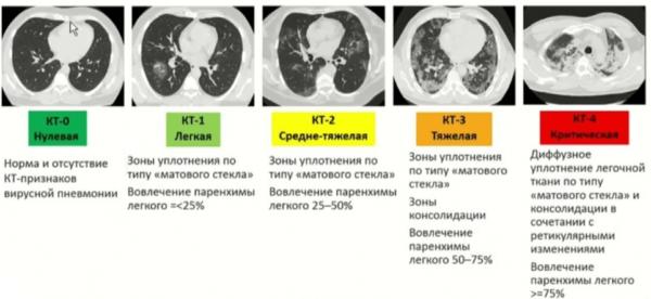 Степени КТ легких при коронавирусе