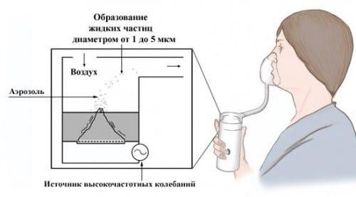 Схема работы ультразвукового небулайзера