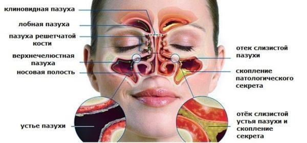 В каких случаях возникает заложенность носа