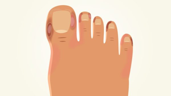 ковидные пальцы