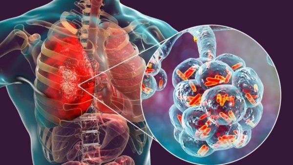 Что представляет собой коронавирусная пневмония