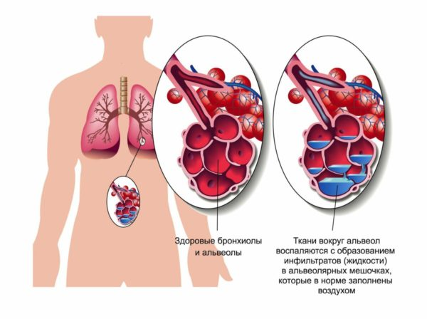 Таким механизм возникновения пневмонии при коронавирусе видят медики